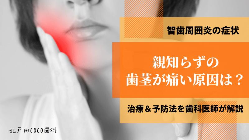 親知らずの歯茎が痛い原因は?智歯周囲炎の3つの症状や治療法を解説